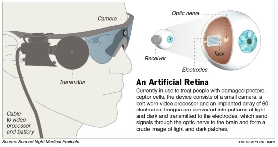 An Artificial Retina